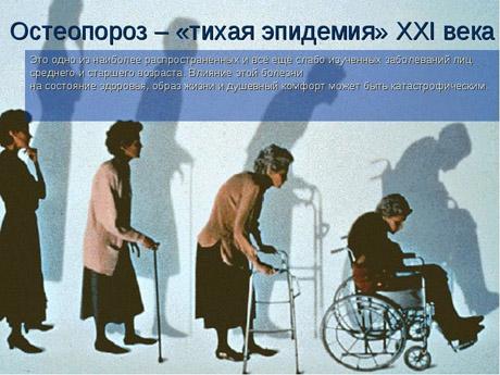 doc_osteoporoz1