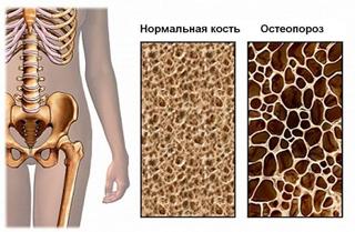 doc_osteoporoz3